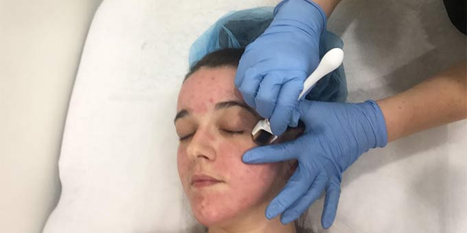 Here's everything you need to know about dermal rolling from someone who's had it done.