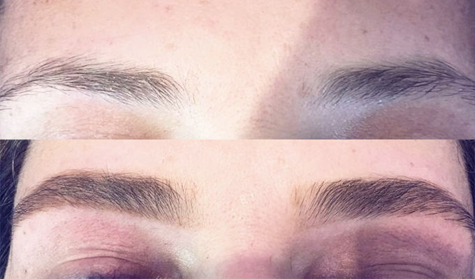 Brow Zing before and after shots